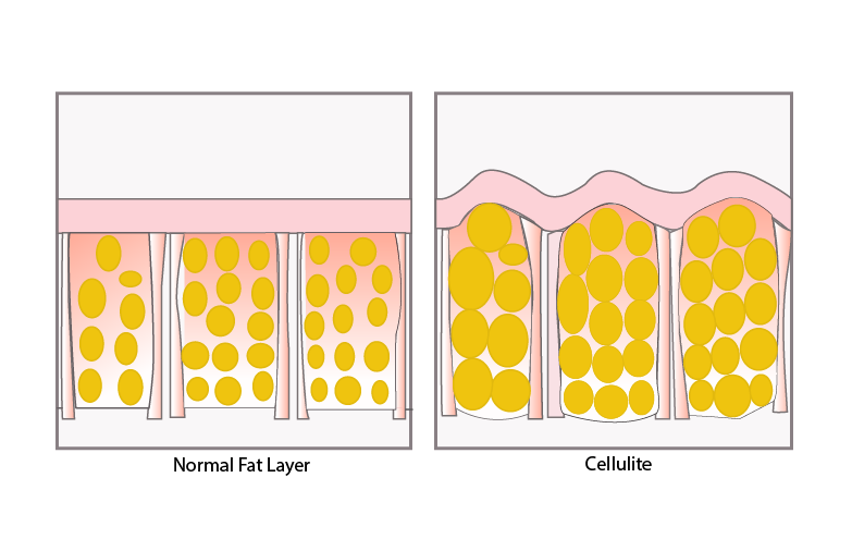 What causes cellulite