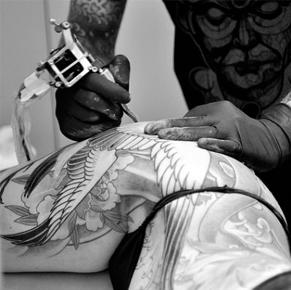 tattoo removal treatment in Melbourne