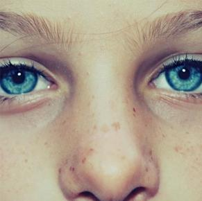 Treating lentigines, brown spots and freckles