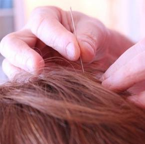 What is cosmetic acupuncture and does it work?