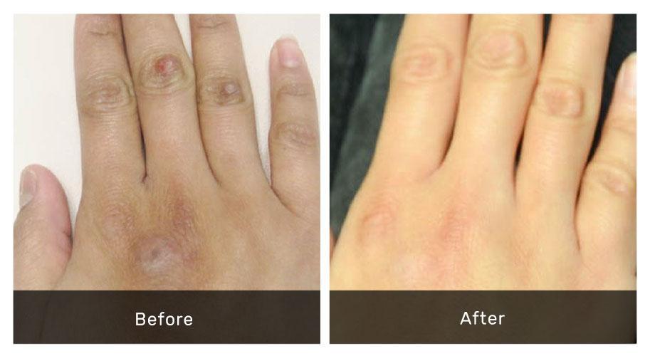 Scar Treatment Hand