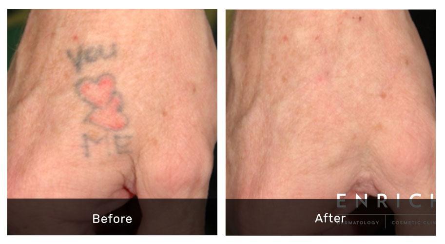 Tattoo Removal using PIQo4