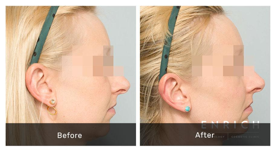 Dermal Filler Filler-Chin