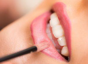 Lip filler treatments in Melbourne
