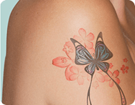 Tattoo Removal Melbourne - ENRICH Clinic