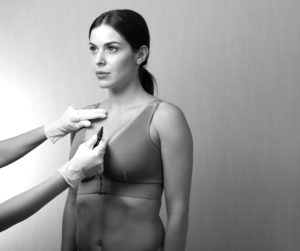 Looking after yourself post liposuction – we talk liposuction garments and after care