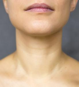 chin liposuction to enhance face
