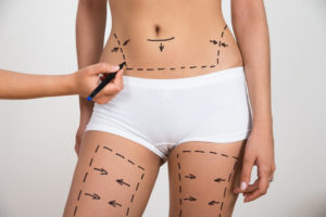 How long does liposuction surgery take?