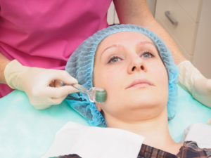 Whats the buzz about skin needling?