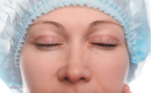 Medical and cosmetic blepharoplasty: what's the difference?