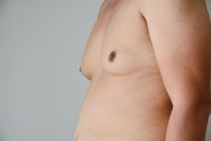How effective is liposuction for gynaecomastia in men?