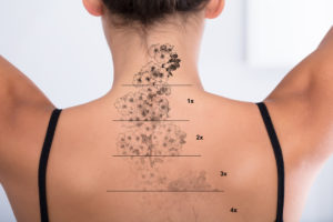 Tattoo removal: why use a medically-trained professional?