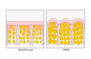 cellulite diagram